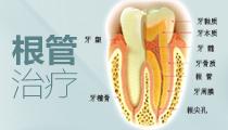 口腔根管治疗
