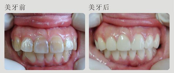 深度色素牙 美容整形案例