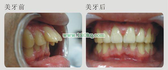 前突、龅牙  美容案例
