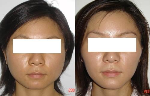 下颌角整形效果前后对比