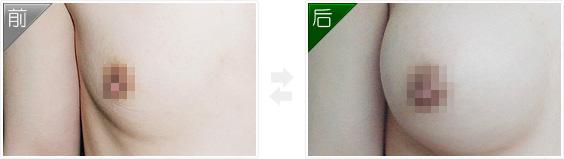 案例:假体隆胸效果对比照片