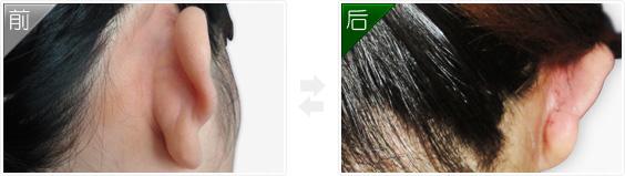 耳部畸形矫正术前后