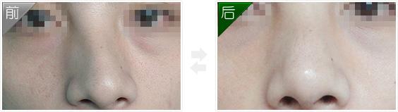 微创隆鼻手术前后对比