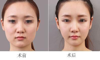 衡阳面部吸脂的原理是什么