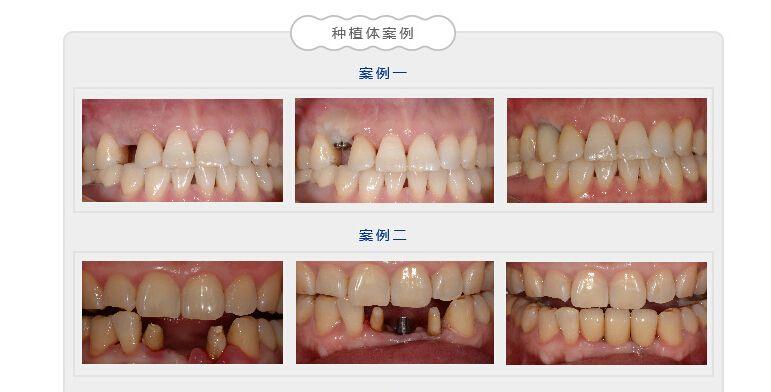 """雅美微创仿生种植牙       雅美·微创仿生种植牙,是将微创技术应用到了种植牙领域,在传统种植牙的基础上用特殊的手术方式和技术来完成种植牙的植入过程,利用微小切口(3~4毫米)将人工牙根""""种""""入口腔内,摆脱了传统种植牙切开翻起牙肉、缝合、拆线等步骤,将创伤降低到小程度,大大减少了肿痛和出血量,大幅度缩短了种植过程所需的时间(种植过程仅需15-30分钟),而且减少了感染的风险,术后几乎不会疼痛和肿胀,是国际上广泛应用的种植方式,雅美微创种植牙更加融入了&quo"""
