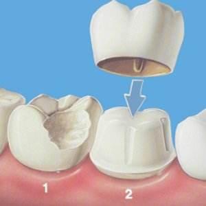 烤瓷牙的修复范围有哪些