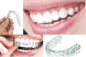 牙缝变宽怎么办